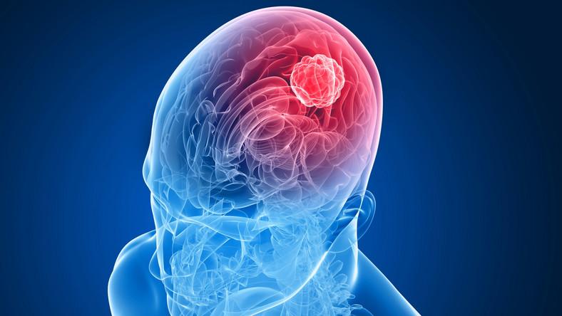Przeprogramowanie mózgu pomoże chorym po udarze