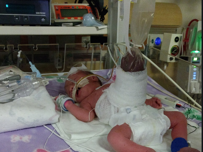 Na prvom ultrazvuku rekli su mi da moja ćerka ima VELIKI PROBLEM: Ali nisam očekivala da će se roditi u OVAKVOM STANJU
