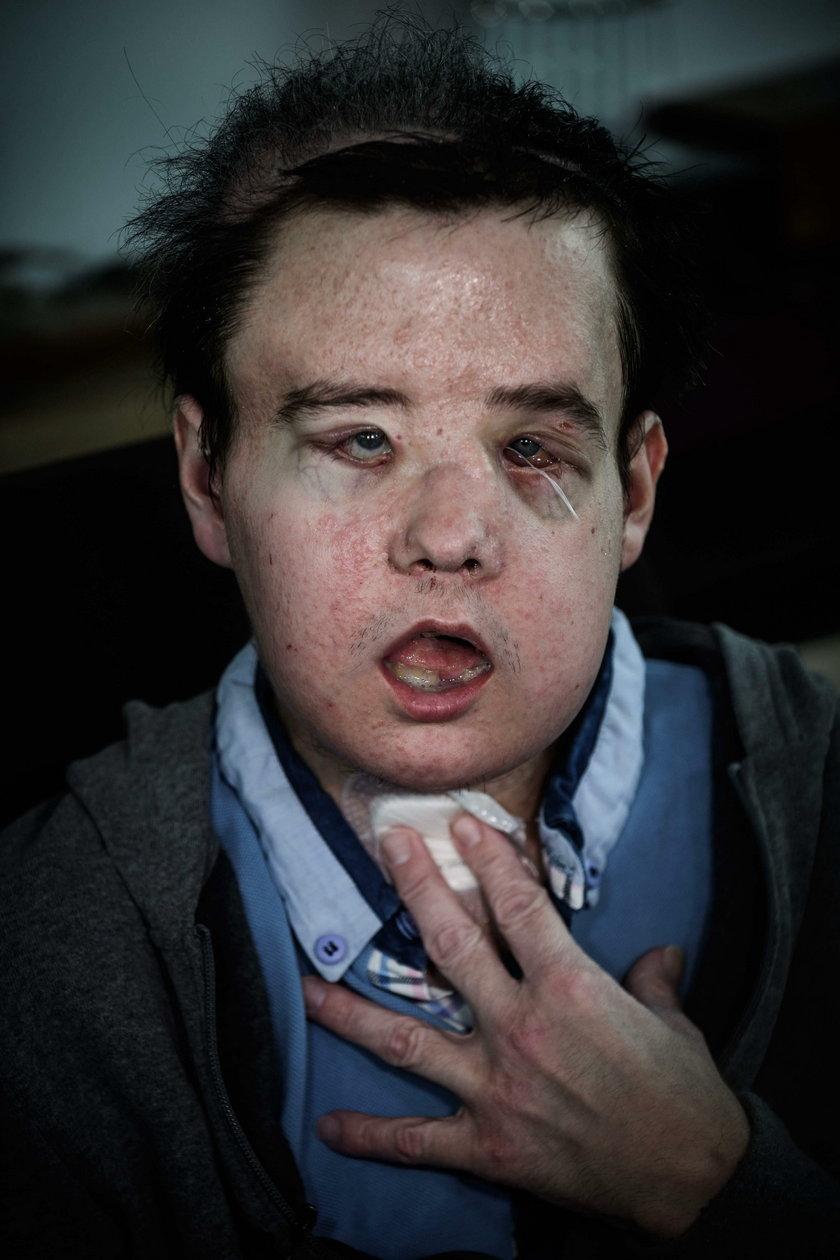 Przeszczepili mu twarz. Drugi raz z rzędu. To pierwszy taki przypadek w historii