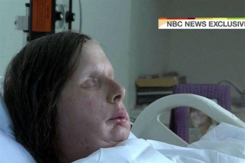 Nie miała nosa, powiek i ust, ale się nie załamała i...