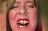 lažni zubi