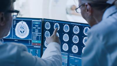 Badacze stworzyli magnetyczny hełm, który zmniejsza masę nowotworu mózgu