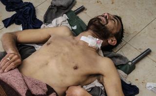 Syryjska agencja SANA: w ataku USA na bazę lotniczą zginęło 9 cywilów