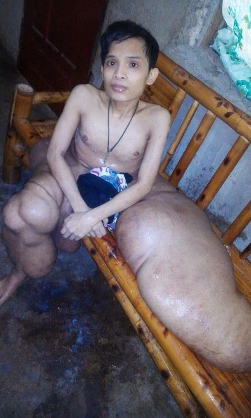 """21-latek z """"nogami słonia"""". Straszna choroba go niszczy"""