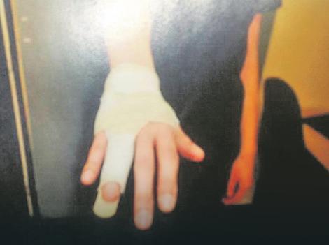 Povrede koje je policija zabeležila kod A. Č., udate za sina višeg tužioca