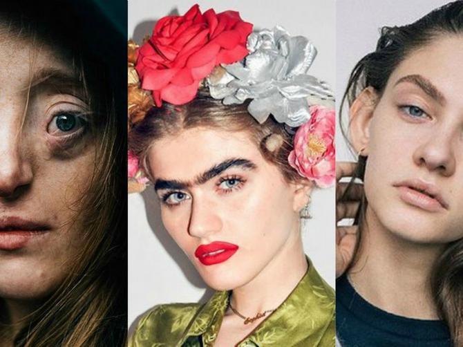 Govorili su im da nisu lepe: Sad su top-modeli