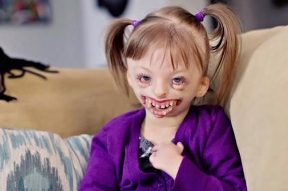 """""""VOLIMO TE, SOFIJA"""" Devojčica (10) koju su ljudi širom sveta besramno ismevali zbog izgleda izgubila bitku za život"""