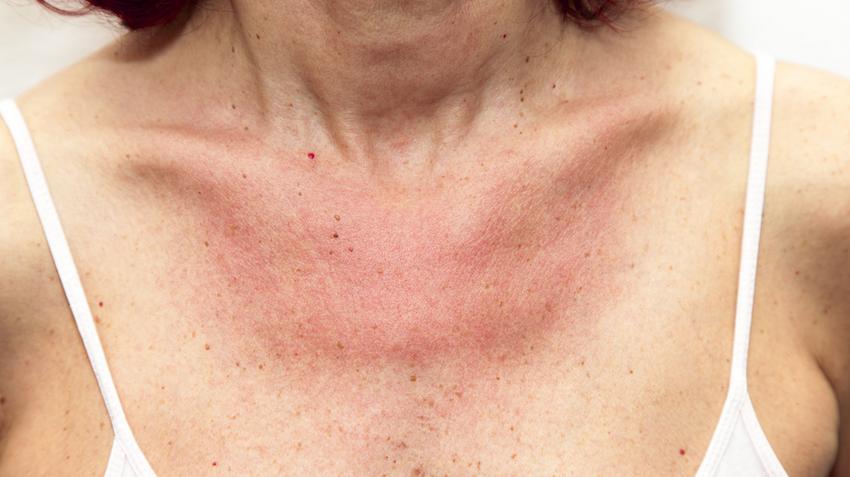 vörös foltok a nyakon viszketés kezelés)