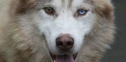 Husky ugryzł roczną dziewczynkę w twarz!