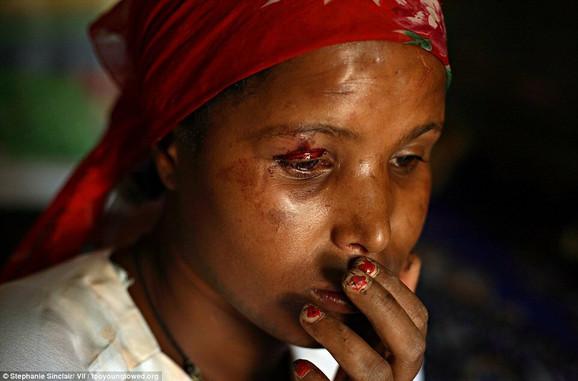 Dno dna: Mlada prostitutka Čina, koju je pretukao muškarac u Bahir Daru, Etiopija