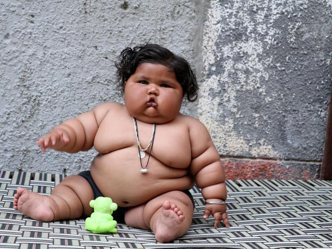 Beba koja je ostavila svet BEZ TEKSTA: Ima 17 kilograma i ovaj VELIKI PROBLEM