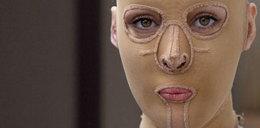 Poparzona kobieta zdjęła maskę!