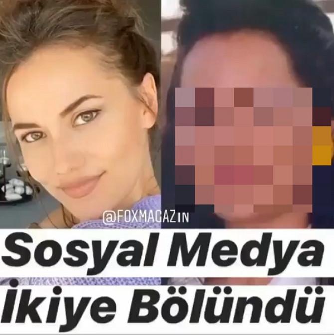 Fahrije Evdžen pre i posle operacija