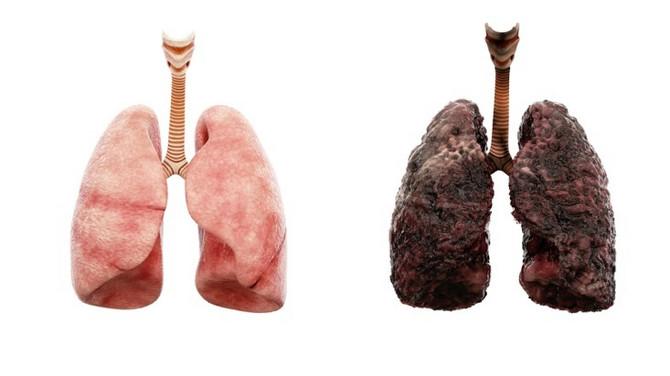 Rak pluća je samo jedna od mnogobrojnih bolesti