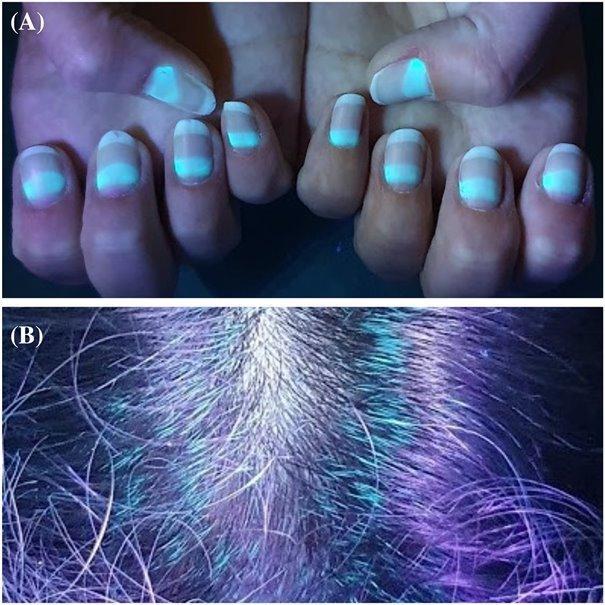 A körmök és a hajszálak is fluoreszkálnak
