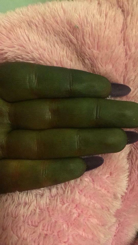 Samoopalacz zabarwił skórę na zielony odcień