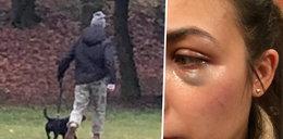 Pies zaatakował jej szczeniaka, sama skończyła z podbitym okiem. Skandal w Poznaniu