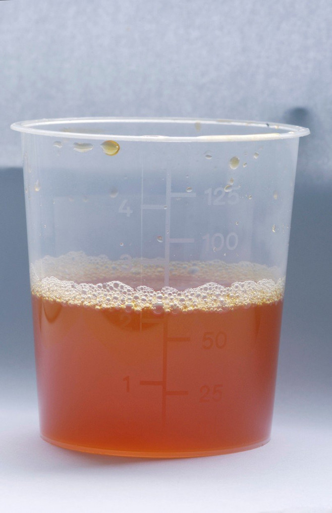 dark orange urine analysis - 343×530
