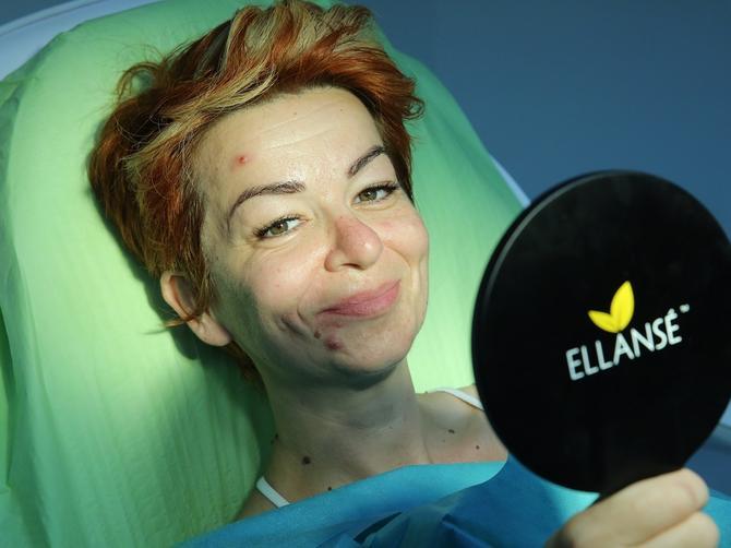 Plastični hirurg sredio Jelenu: Morate da vidite njeno novo lice!