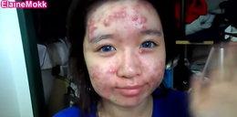 Straszna choroba skóry przykryta makijażem