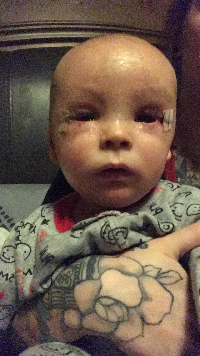 Synek  Shai-Anne Sifford jest bardzo chory. Matka leczy go olejem z marihuany
