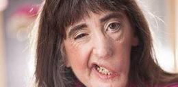 Ta kobieta ma połowę twarzy. Odmawia operacji