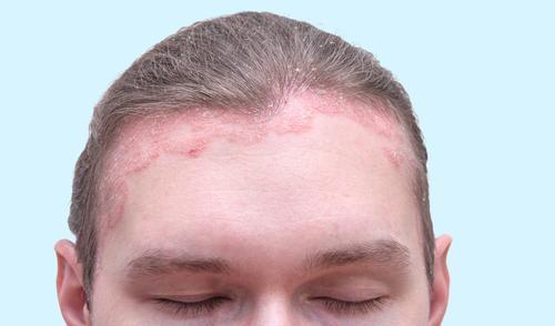 bevált gyógymód a pikkelysömörhöz méz az arcon lévő vörös foltokért