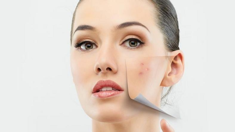 Simple home remedies work perfect for skin blemishes
