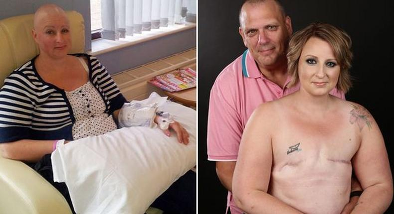 Cancer survivor, Alison Hawkes and husband, Ian Hawkes in a topless photoshoot