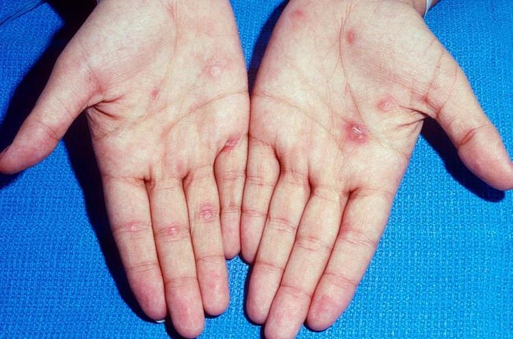 Сифилис - поздний симптом