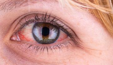 vörös foltok pikkelyesek a szem alatt