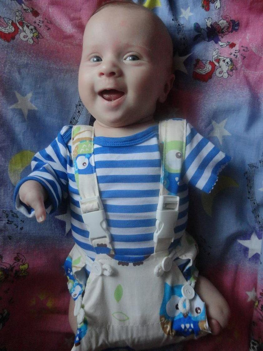 Zawiercie. Trzymiesięczny Oliwier urodził się bez rak i nóg