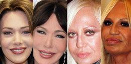 Operacje plastyczne zniszczyły im twarze