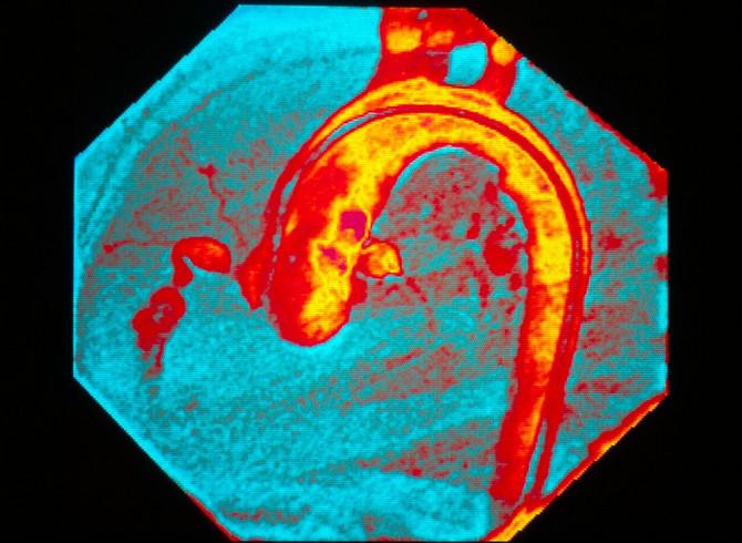 Koronarna arterija deteta sa Kavsakijevom bolesti
