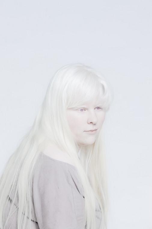 Zdjęcia laureatki World Press Photo – Anny Bedyńskiej