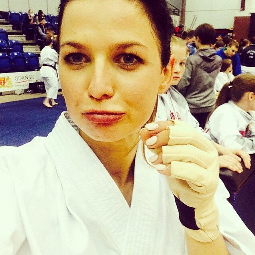 Anna Lewandowska ma obitą twarz