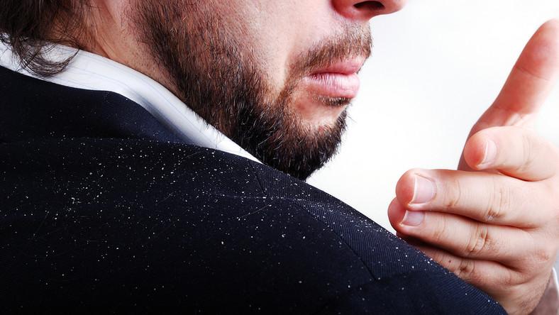 1. Łupież widoczny na ubraniu i zaniedbana skóra głowy.