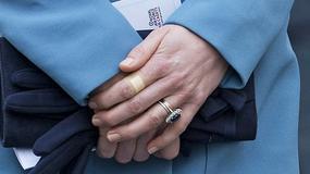 Księżna Kate Middleton ma tendencję do kaleczenia się?!