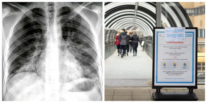 Još jedno mišljenje lekara o riziku pušača od korona virusa