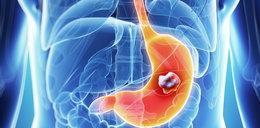 Nowa metoda walki z rakiem