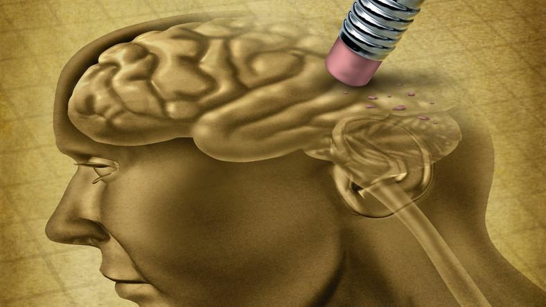 mózg, alzheimer