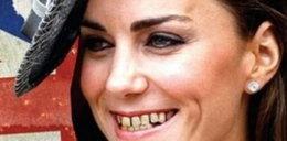 Księżnej Kate wypadają zęby?