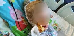Rottweiler odgryzł dziewczynce kawałek twarzy. Dramat na poprawinach