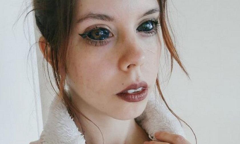 """Aleksandra Gałuszka """"Fanka Popka"""" pozywa tatuatora. Prawie straciła wzrok"""