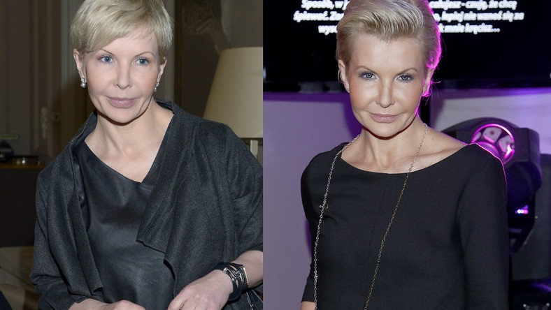 W ostatnich kilku latach jej twarz już kilka razy przechodziła radykalne zmiany...