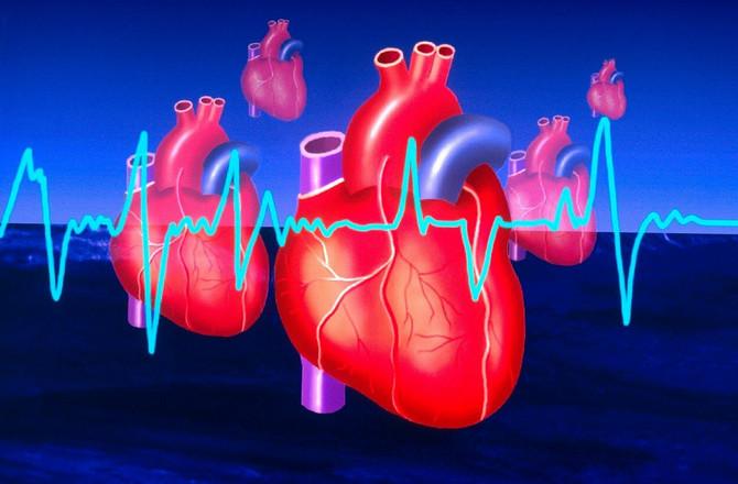 Zaštite svoje srce na vreme