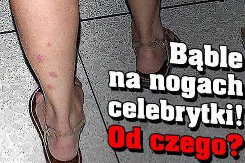 Bąble na nogach celebrytki! Od czego?