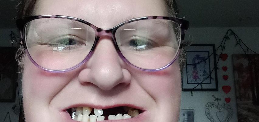 Nie było miejsc do dentysty. Postanowiła sama wyrwać sobie zęby