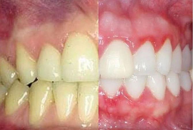 Избјељивање зуба код стоматолога