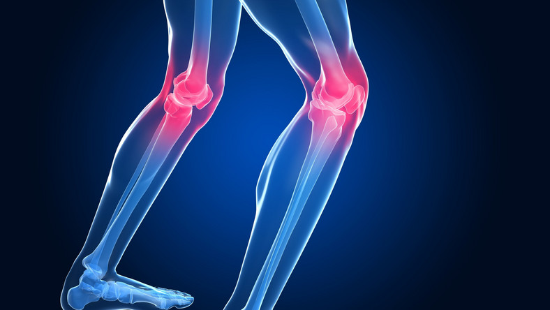 Choroby reumatyczne: postęp w zapobieganiu i leczeniu
